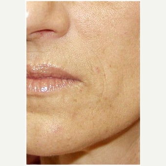 Woman treated with Restylane after 2661352