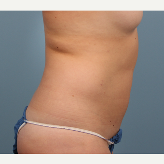 Liposculpture Body Contouring after 3070769