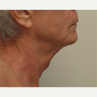 55-64 year old man treated with Neck Lift before 3763275