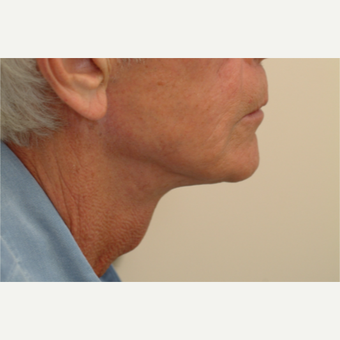 55-64 year old man treated with Neck Lift after 3763275