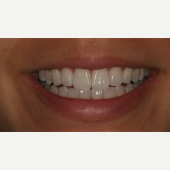 25-34 year old woman treated with Clear Braces after 3129064