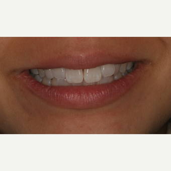 25-34 year old woman treated with Clear Braces before 3129064