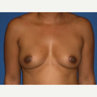 35-44 year old woman treated with Breast Augmentation before 3009257