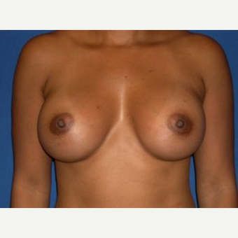 35-44 year old woman treated with Breast Augmentation after 3009257