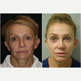 55-64 year old woman treated with Revision Rhinoplasty before 3847213