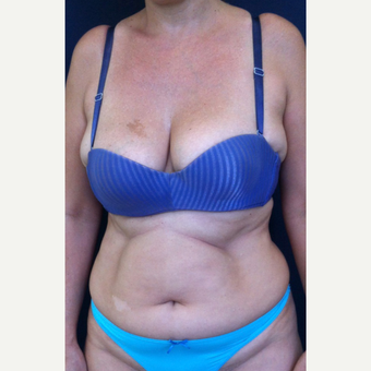 42 year old woman treated with Tummy Tuck before 2215850