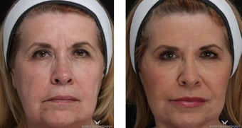 Liquid Facelift with Voluma & Juvederm before 1506637