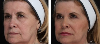 Liquid Facelift with Voluma & Juvederm after 1506637