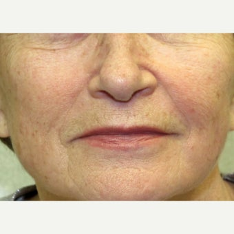 55-64 year old woman treated with Acne Surgery