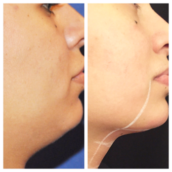 25-34 year old woman treated with Kybella before 3762814