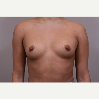 25-34 year old woman treated with Breast Implants before 3142121