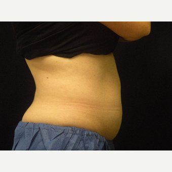25-34 year old woman treated with CoolSculpting before 3679815