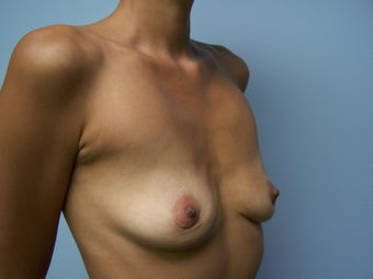 Breast Implant Removal 1082633