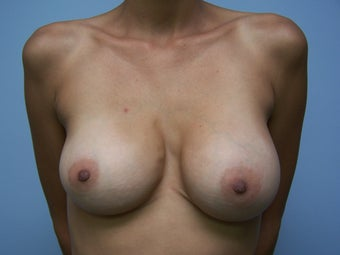 Breast Implant Removal before 1082633
