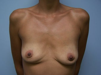 Breast Implant Removal after 1082633