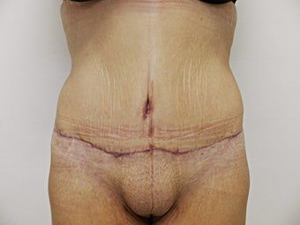 Tummy Tuck after 945192
