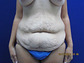 Tummy Tuck before 945192