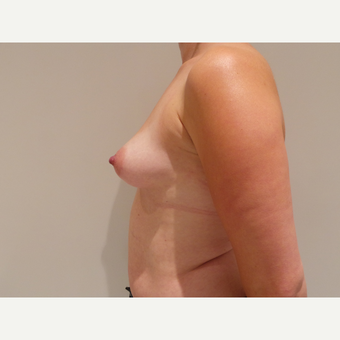 25-34 year old woman treated with Breast Augmentation before 3765698