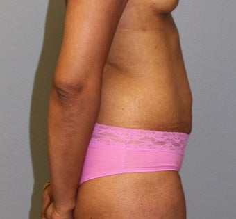 45-54 year old woman treated with Tummy Tuck before 3141584