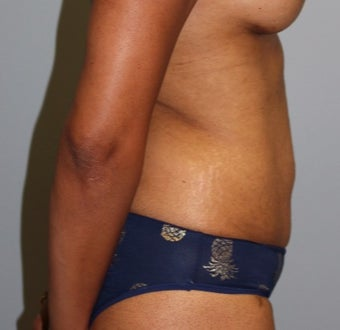 45-54 year old woman treated with Tummy Tuck after 3141584