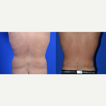 45-54 year old man treated with Mini Tummy Tuck before 2896097