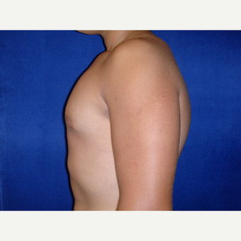 25-34 year old man treated with Male Breast Reduction after 3727307