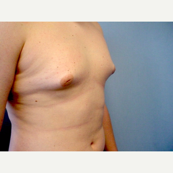 17 or under year old man treated with Male Breast Reduction before 3298137