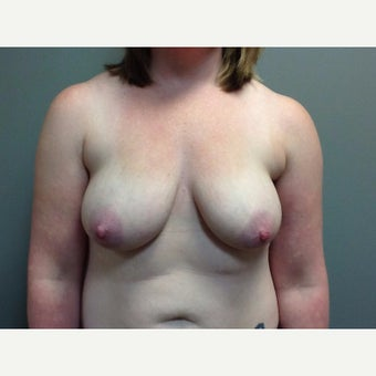 29 year old woman treated with Breast Reconstruction