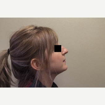 25-30 year old woman treated with Rhinoplasty before 3274586