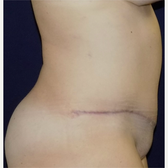 25-34 year old woman treated with Tummy Tuck after 3679414