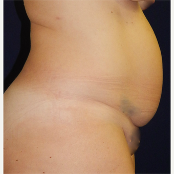 25-34 year old woman treated with Tummy Tuck before 3679414