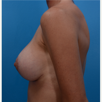 38 year old woman treated with Breast Lift with Implants after 3327131