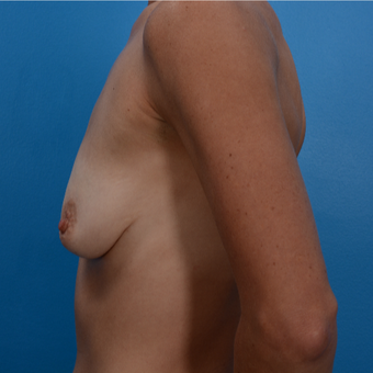 38 year old woman treated with Breast Lift with Implants before 3327131