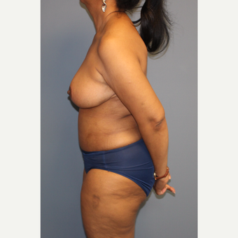 45-54 year old woman treated with Breast Reduction after 3557893