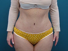 Tummy Tuck with liposuction of the hips. after 1125256