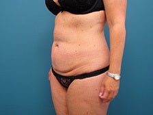 Tummy Tuck with liposuction of the hips. 1125256