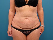 Tummy Tuck with liposuction of the hips. before 1125256