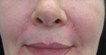 54 year old Female Treatment for Naso-labial fold after 694144