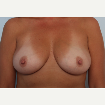 Breast Augmentation before 3459981