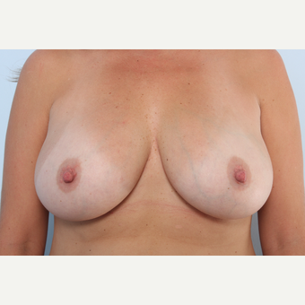 Breast Augmentation after 3459981