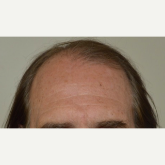 55-64 year old man treated with FUE Hair Transplant before 3750175