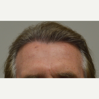 55-64 year old man treated with FUE Hair Transplant after 3750175