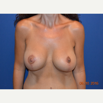 35-44 year old woman treated with Breast Lift after 3423475