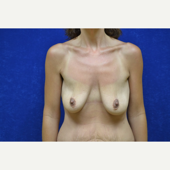 35-44 year old woman treated with Breast Lift before 3423475