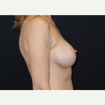 45-54 year old woman treated with Breast Augmentation after 3305117