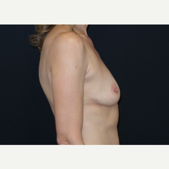 45-54 year old woman treated with Breast Augmentation before 3305117