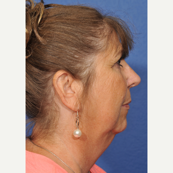 55-64 year old woman treated with Rhinoplasty after 3237455