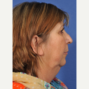 55-64 year old woman treated with Rhinoplasty before 3237455