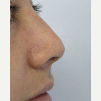 Rhinoplasty after 2993751