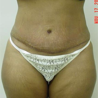 35-44 year old woman treated with Tummy Tuck after 3287711